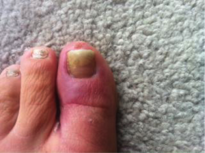 Fungal Toe Infection 4