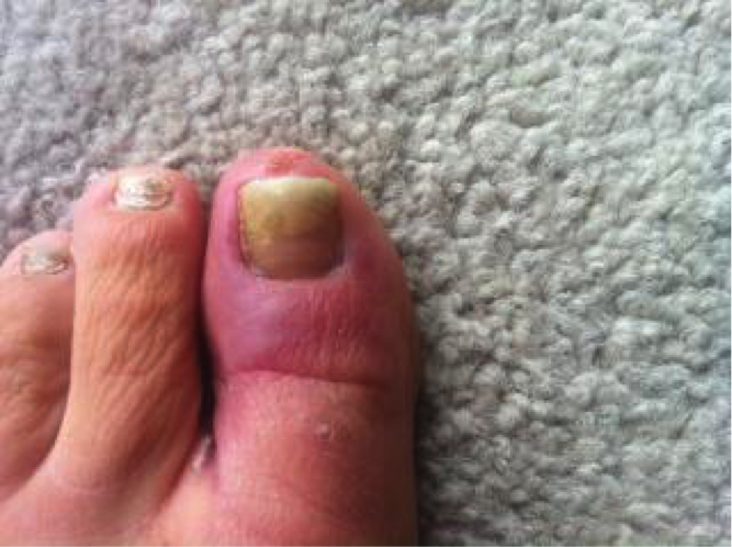 Stubborn Fungal Infection in Toe - Purely Earth