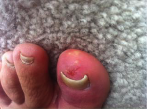 Fungal Toe Infection 5