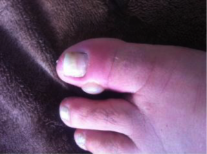 Fungal Toe Infection 6