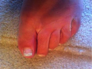 Fungal Toe Infection 7