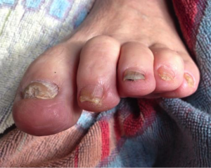Fungal Nails, Purely Earthq