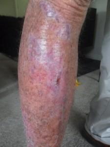 leg-wound3